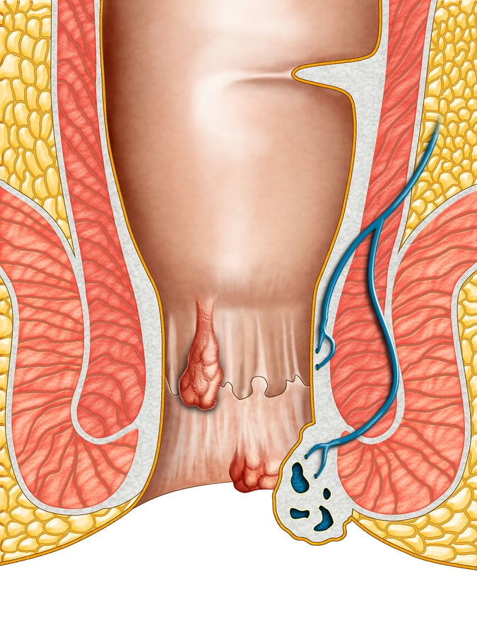 best hemorrhoid treatment