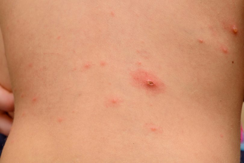 natural remedies for shingles