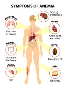 What Foods Can Make Your Stool Pale