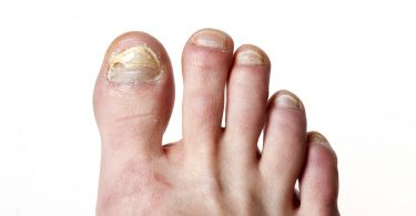 natural remedies for toe nail fungus