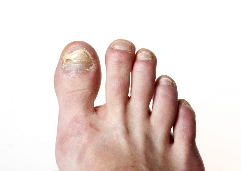 Natural Remedies For Toe Nail Fungus | Mother Of Health