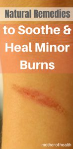 natural remedies to soothe and heal minor burns