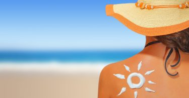 best natural sunburn remedies