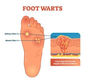 home remedies to remove warts