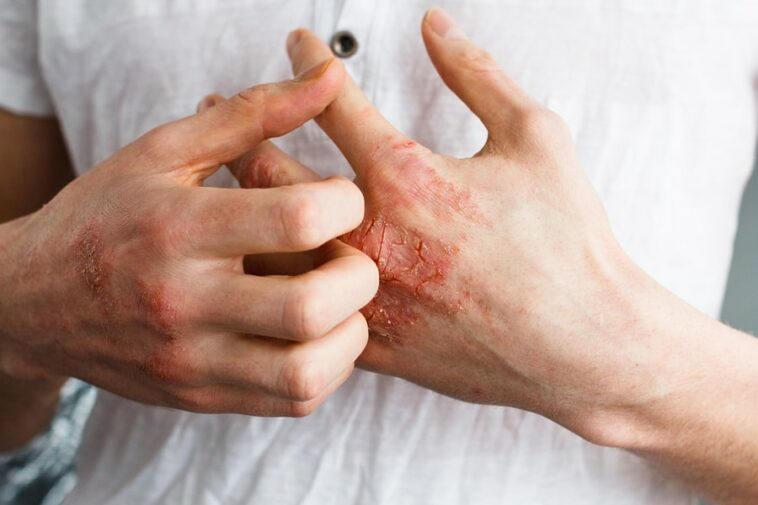 natural eczema remedies